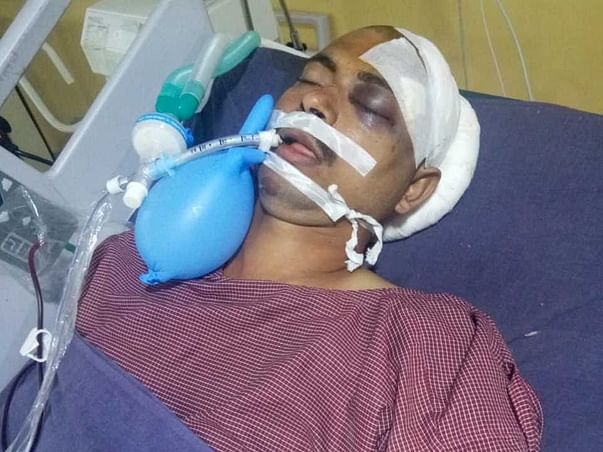 Support Vijay Kumar recover from Road traffic accident with polytrauma