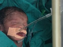 Help baby of Sujata recover from Intensive Care Unit