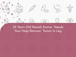 25 Years Old Naresh Kumar  Needs Your Help Recover  Tumor In Leg