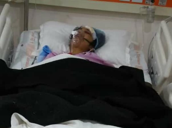 Help My Friend Reena Recover From Bilateral Fracture