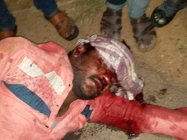Help My Friend Gudala Shiva Who Met With A  Road Traffic Accident Yesterday