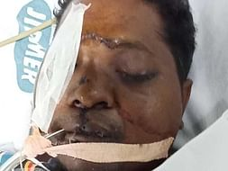 Help Solomon Arputharaj To Recover From The Dangerous Road Accident
