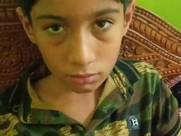 10 Years Old Jaspal Needs Your Help Fight Acute Lymphoblastic Leukemia (All).