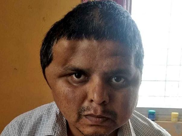 Support Chetan Jadhav A Patient Of Paralysis & Brain Stroke