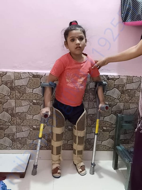 After surgery - Gunjan can stand with walker