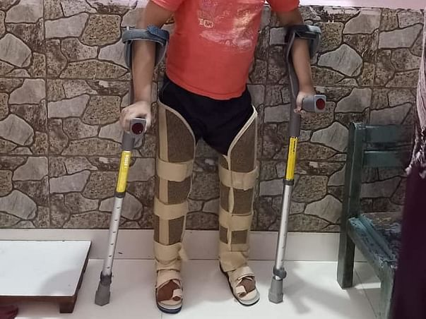 Support Gunjan Recover From Cerebral Palsy with Leg Deformity.