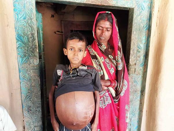 12 Years Old Pawan Kumar Yadav Needs Your Help Fight Massive Splenomegaly