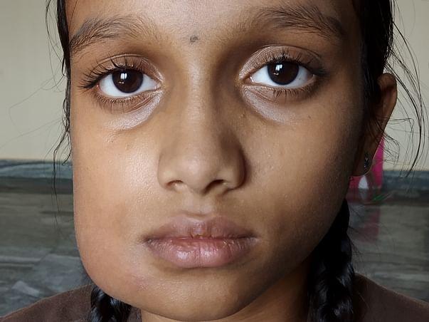 13 Yrs Old Sai Bindu Needs Your Help for RT MANDIBULAR AV MALFORMATION
