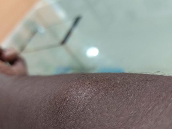 Help Kavi Undergo Lipoma Removal Surgery