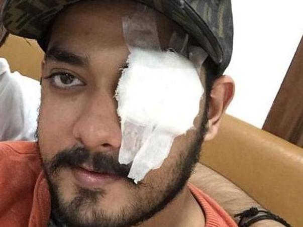 Help Krishna For Eye Operation
