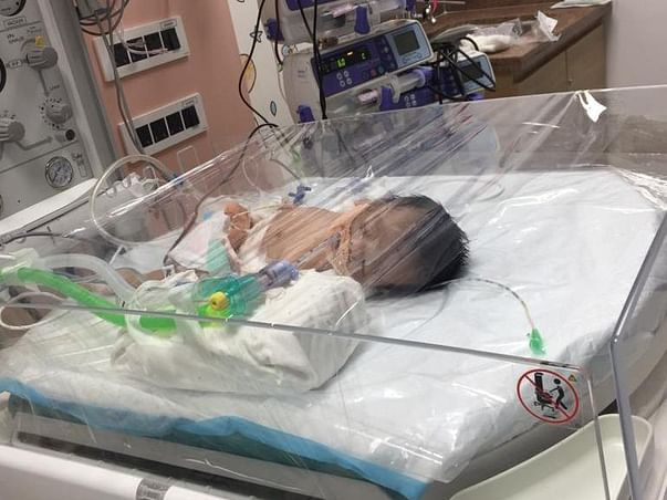 16 Days Old Baby Samuel Isaac Needs Your Help Fight Diaphragmatic Hernia