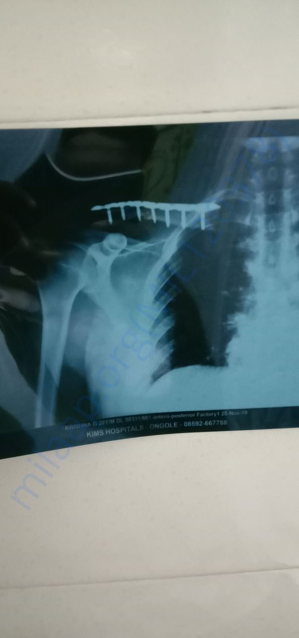 x ray after surgery