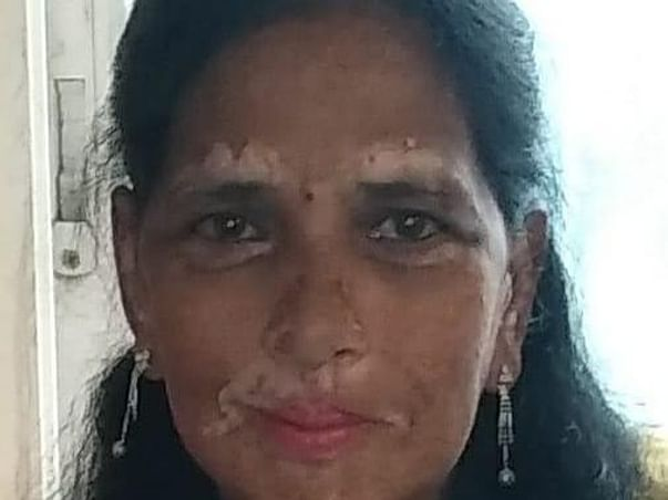 Please Help Anupamma Fight Multiple Organ Dysfunction