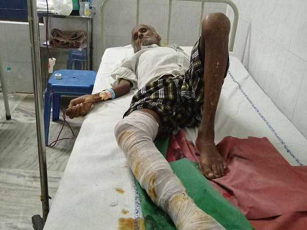 Help My Uncle Fight Cellulitis ( right leg was amputated )