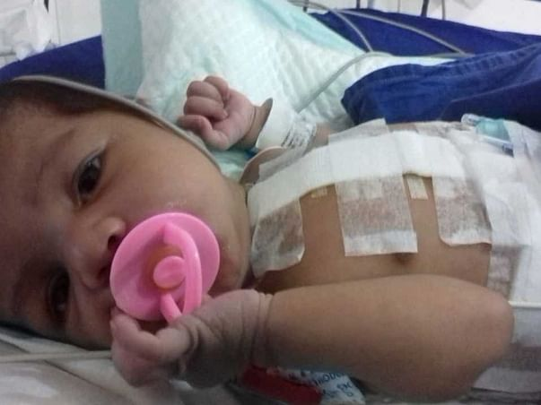 Support Arqam Feroz Recover From Transposition Of Greater Arteries