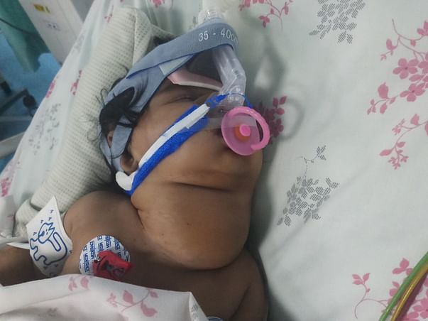 Help My Baby Fight Cystic Hygroma