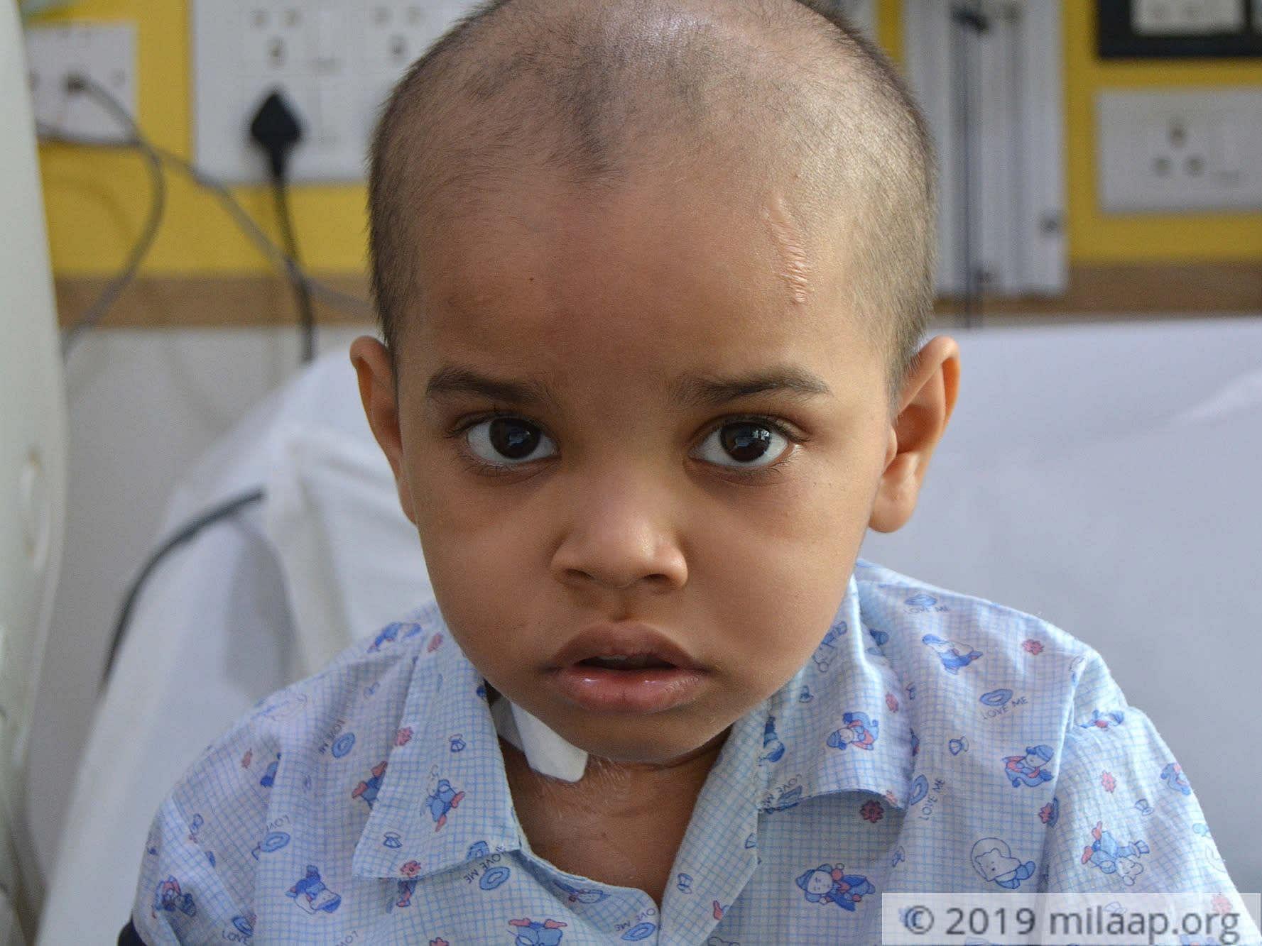Aarush surya hospital 02 jkngdt 1574139330 ctsgc4 1575112816