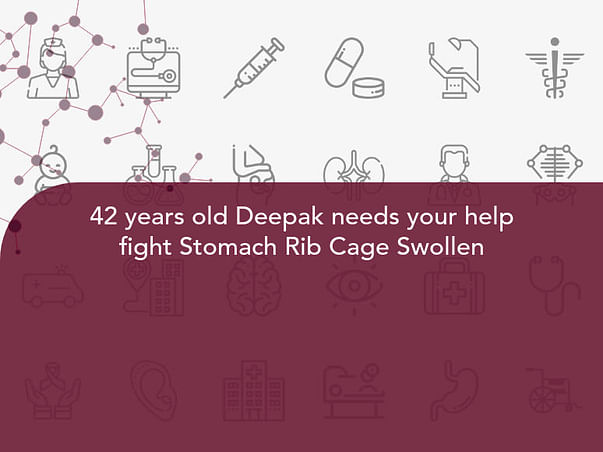 42 years old Deepak needs your help fight Stomach Rib Cage Swollen