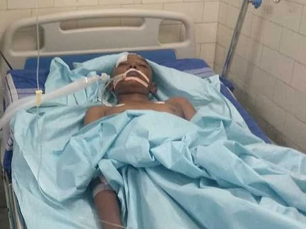 Support Amarnath Recover From Road Accident