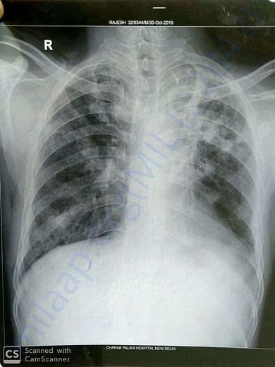 x-ray and reports