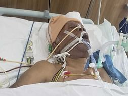 Help My Uncle who is Fight Against his life after Massive Brain Stroke