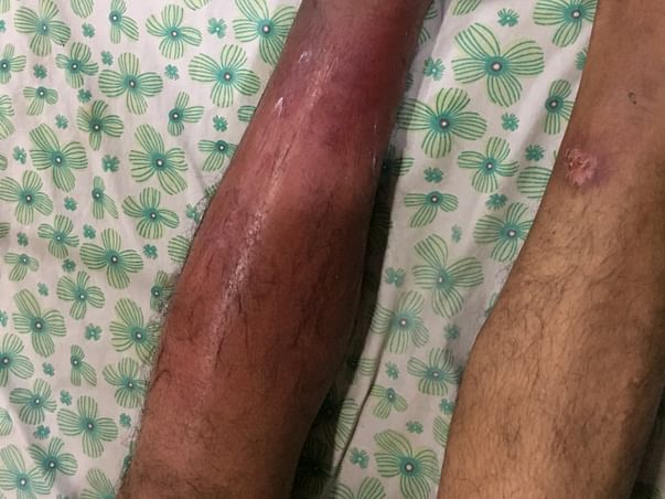 Help My Father Fight Fungus Infection