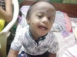 3 Years Old Tejas Ajay Gaikar Needs Your Help Fight Down Syndrome
