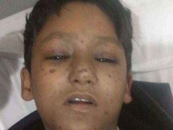 Support Ali Mirza Fight From Aplastic Anemia
