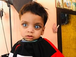Help Ibrahim Fight Absolute Glaucoma