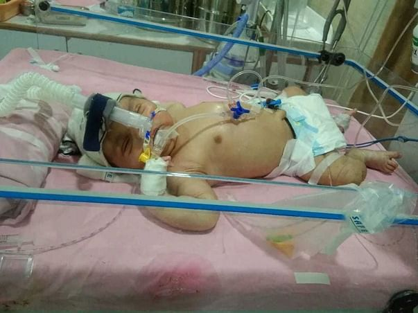 9 days old baby requires your help to survive.