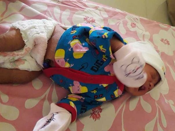 Newborn Baby is fighting for Spinal Cord Surgery to live