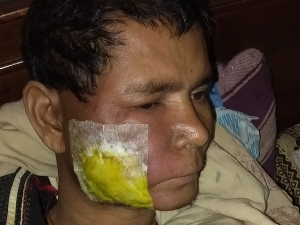 Help My Uncle Fight This Battle