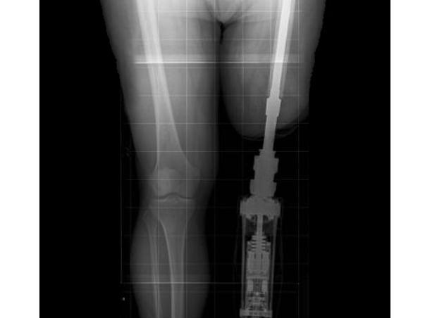 Help Subhas for Prosthetic Leg