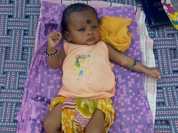 1 Month Old Baby Of Bhagyalakshmi Needs Your Help Fight Congenital Umbilical Hernia