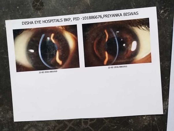 Need money for medical eyes problem.