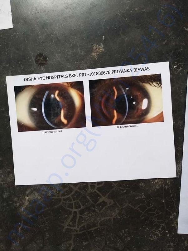 Need money for medical eyes problem