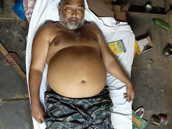 Need Support For Vijay Kumar, He Is Suffering Kidney And Filaria