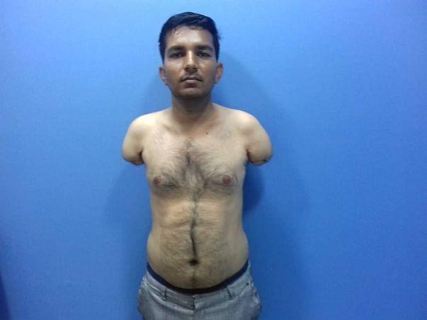 Help Premaram Undergo Hand Transplant