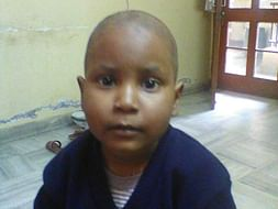 5 Years Old Gunjan Needs Your Help To Fight Blood Cancer