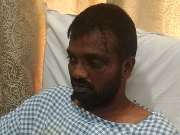 Support Manohar Recover From Head Injury