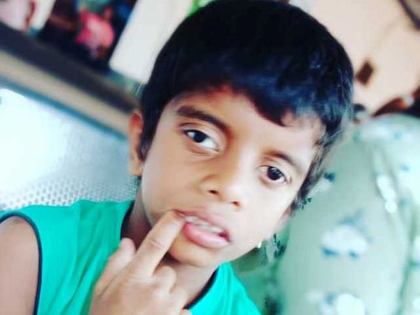 Support Jaiyesh Recover From West Syndrome