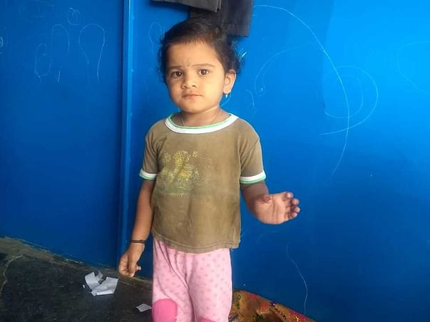 3 Years Old Naditha Needs Your Help To Recover From Biliary Atresia