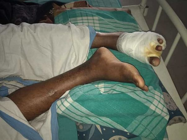 Help Mr B Anil Kumar For Surgery Of Left Foot Due To Diabetes