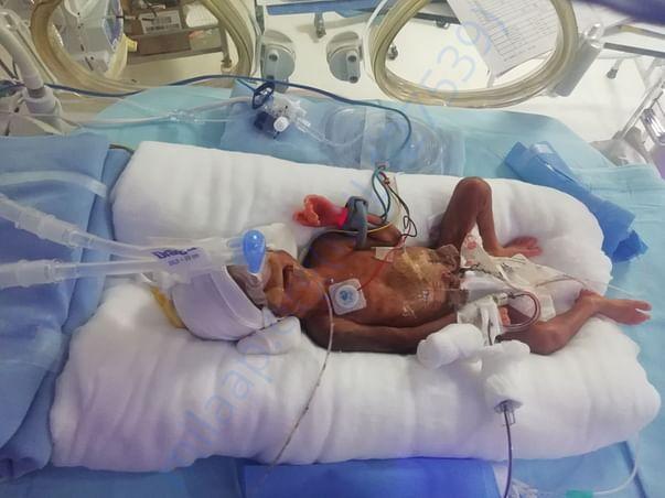 Baby of teja