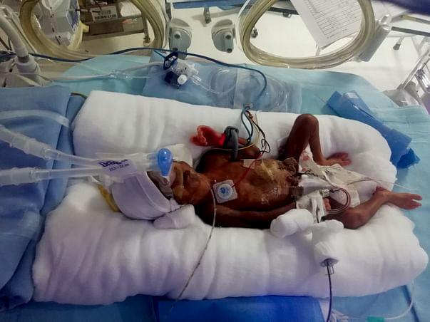 Help My Baby Live!