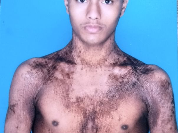 Support Mukul Varma Recover From Ichthyosis Vulgaris
