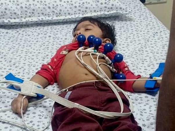 2 yr old Mustafa  Ali needs yourhelp fight bradycardia comp hrt block