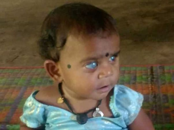 Support Vidhi Recover From Eye Cataract