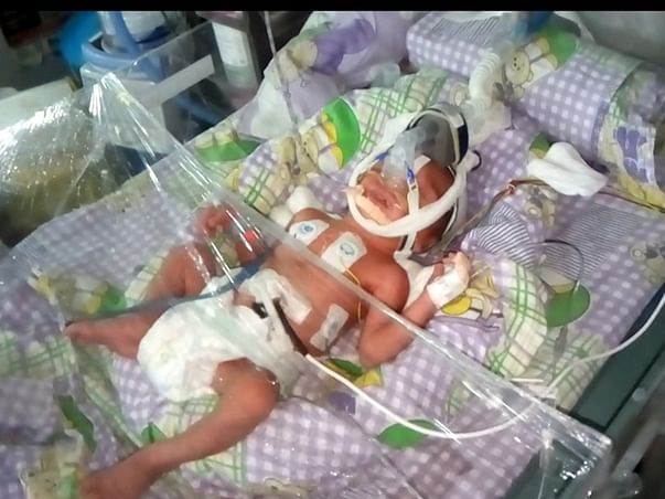 Please Donate Funds For Premature Baby And Save Her Life