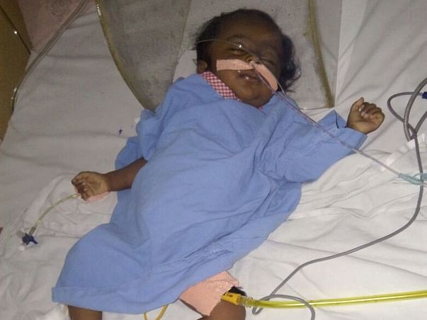 1 Year Old Lasya Priya Needs Your Help Fight Liver Problem